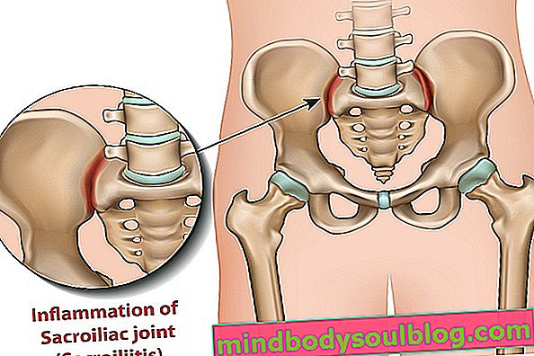 التهاب المفصل العجزي الحرقفي: ما هو وأعراضه وأسبابه وكيفية علاجه