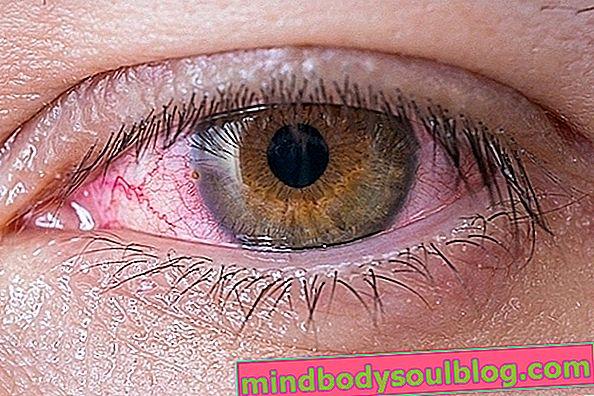 Yeux larmoyants: 6 causes courantes et que faire