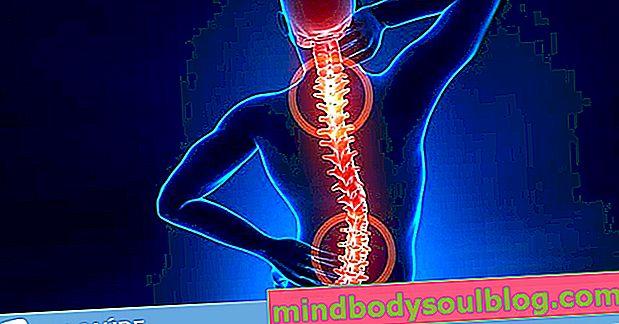 Symptômes de la hernie discale lombaire, cervicale et thoracique et comment prévenir