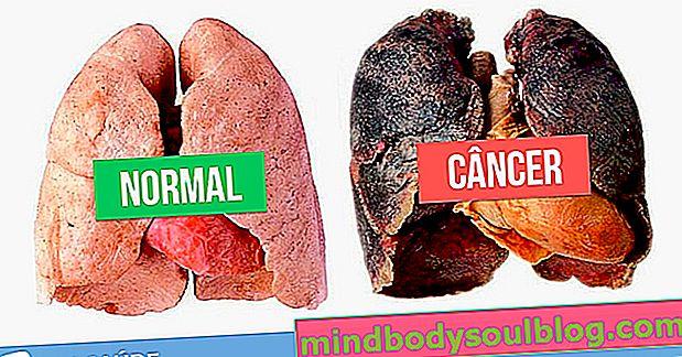 Principaux symptômes pouvant indiquer un cancer du poumon