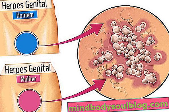 Apprenez à reconnaître les symptômes de l'herpès