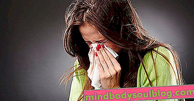 10 أعراض أنفلونزا H1N1 وكيفية التفريق بين الأنفلونزا الشائعة