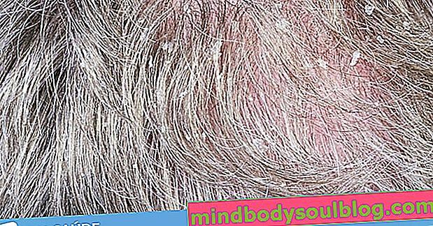 6 Ursachen für Kopfhautschmerzen und was zu tun ist