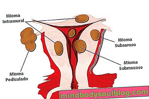 Types de fibromes utérins